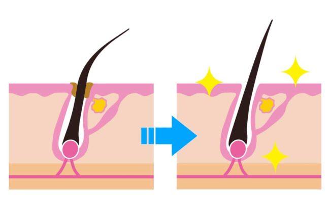 毛穴の角栓や詰まりを解消する